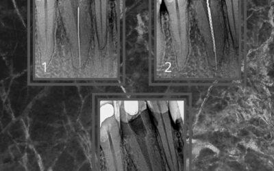 Lima Fraturada que ultrapassou o forame Apical